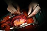 شیوه جدید جراحی قلب در شیراز بدون باز کردن قفسه سینه + ویدیو